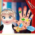 baby-elsa-hand-doctor